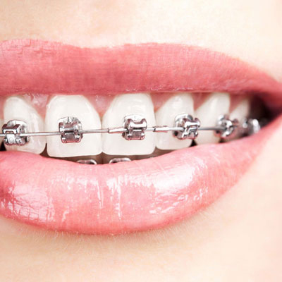 The British Society for the Study of Orthodontics